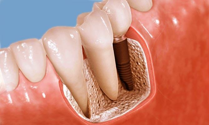 можно ли есть при имплантации зуба