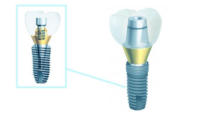 Конструкция зубного импланта