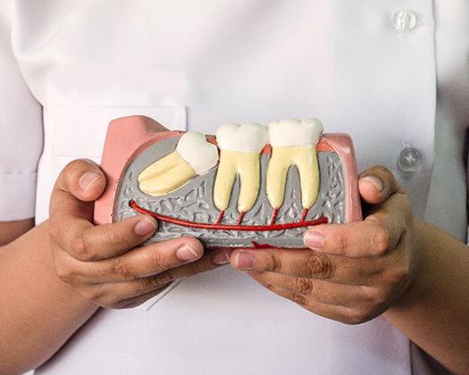отбеливание зубов zoom 4 недорого