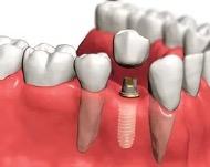 Как проходит процедура имплантации зубов