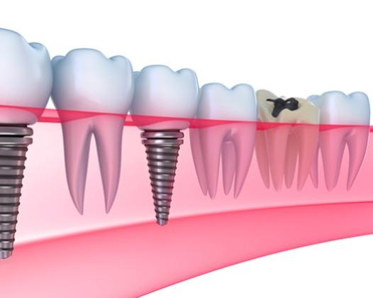Имплантация зубов без разреза в Москве, стоматология ЛидерСтом отзывы