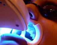 Лазерное отбеливание ― быстрый путь к голливудской улыбке