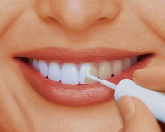Отбеливание зубов Air Flow — щадящее осветление