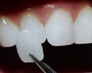Какие дефекты можно исправить с помощью виниров или как правильно выбрать накладки на зубы