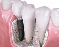 Установка имплантов - современный способ восстановления зубов