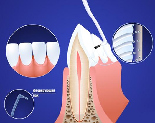 Фторирование зубов как профилактика кариеса