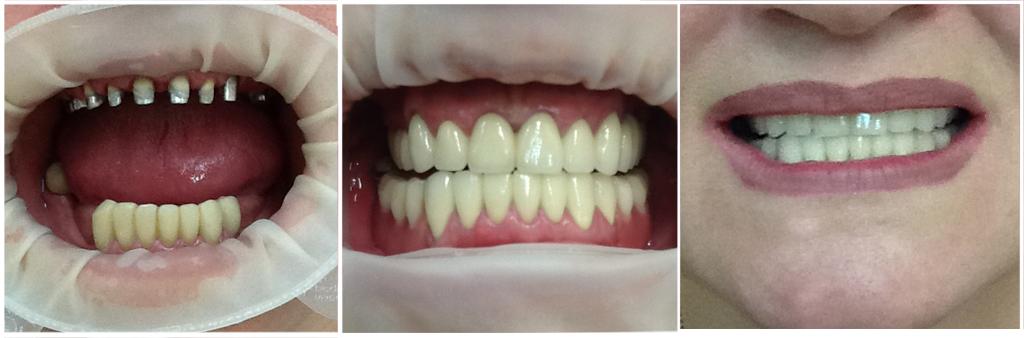 Металлокерамика протезирование зубов фото до и после.