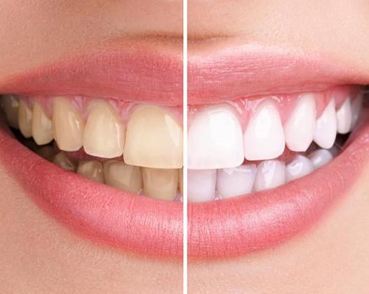 Профессиональное отбеливание зубов с помощью Zoom 3