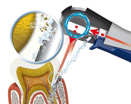 «Вектор» – уникальный аппарат для здоровья зубов