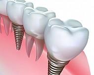 Имплантация зубов: возможные осложнения во время и после операции
