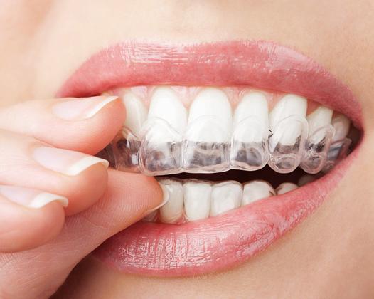 Безопасное отбеливание зубов — выбираем оптимальную систему