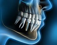 Современная имплантация зубов: методы и их особенности