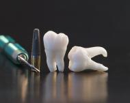 Одноэтапная имплантация зубов: отзывы, цена