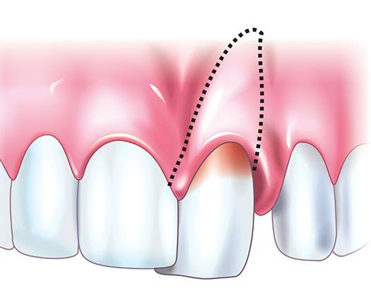 Зубные отложения и правила гигиены