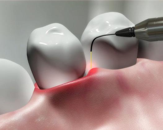 Современное лечение зубов в Москве