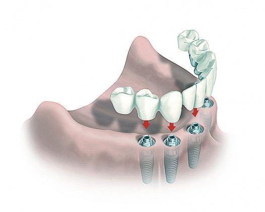 Процедура имплантации зубов: для чего ставить имплант