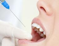 Анестезия в стоматологии: как обезболить зубы