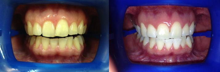 отбеливание тетрациклиновых зубов отзывы