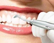 Гигиеническая профессиональная чистка зубов в стоматологии