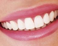 Зачем обтачивать зубы перед установкой виниров