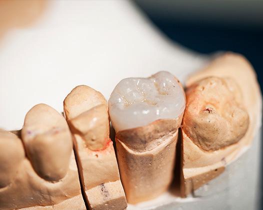Разрушение части зуба