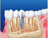 Отторжение зубных имплантов: фото, почему это происходит