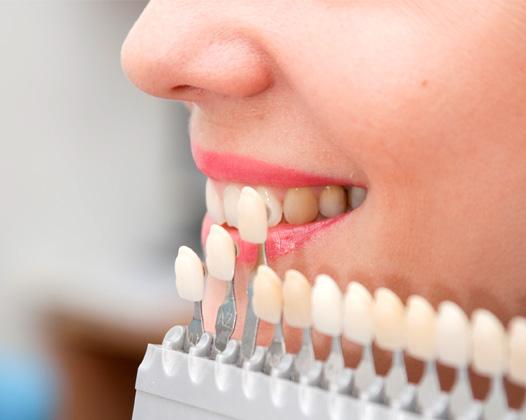 Желтые зубы: причины