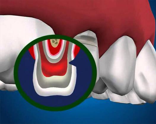 Клиновидный дефект: причины возникновения и лечение