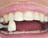 Виниры для исправления кривых зубов