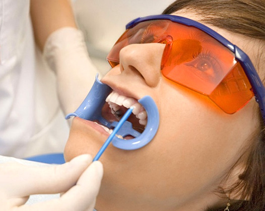 Быстрое отбеливание зубов