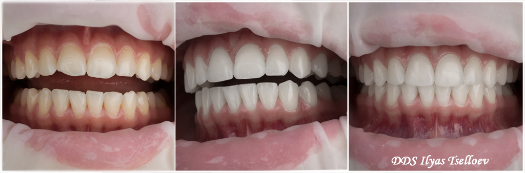 фото виниров на зубах