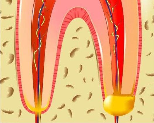 Периодонтит — заболевание прикорневых тканей зуба