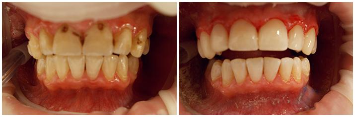 Световая пломба на передние зубы фото до и после