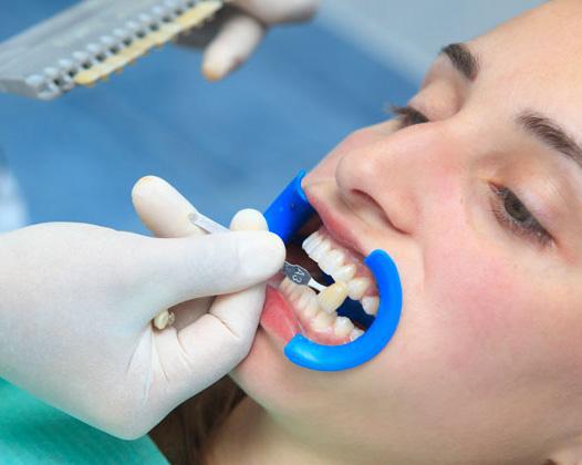 Отбеливание Zoom ― современный метод осветления зубов