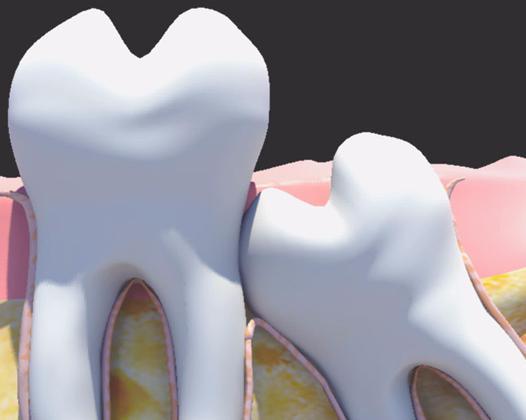 Воспаление десны в области зуба мудрости