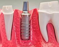 Противопоказания к имплантации зубов и возможные риски