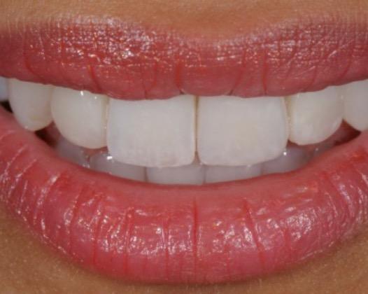Как дешево поставить качественные виниры на зубы