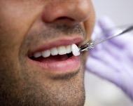 Стоматологические виниры на зубы