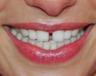 Виниры помогут скрыть щели между зубами