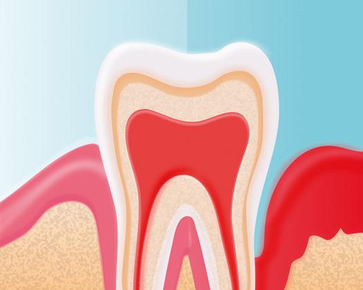 Болит десна под зубом
