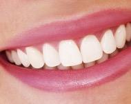 Типы виниров, какие винирные накладки лучше установить на зубы