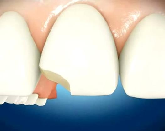 Наращивание переднего зуба — возможности эстетической стоматологии