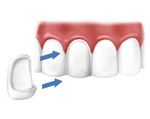 Виниры – новый шаг к красоте и здоровью зубов