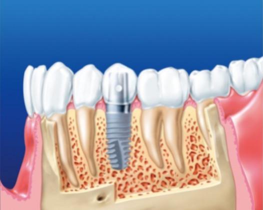 Экспресс имплантация для восстановления зубного ряда