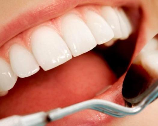 Особенности конструкции, преимущества и недостатки виниров на передние зубы