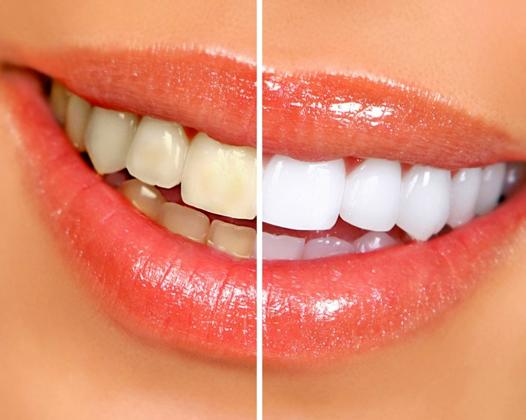 Отбеливание зубов ― акции и скидки