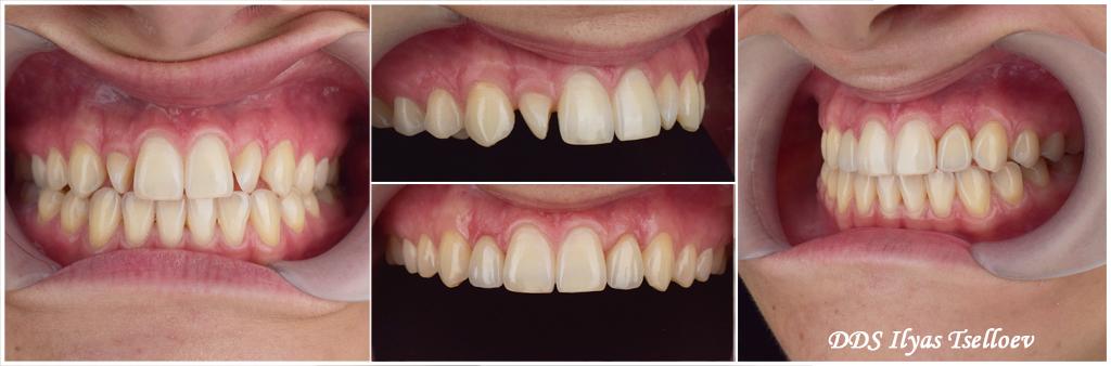 винир терапевтический на фронтальные зубы