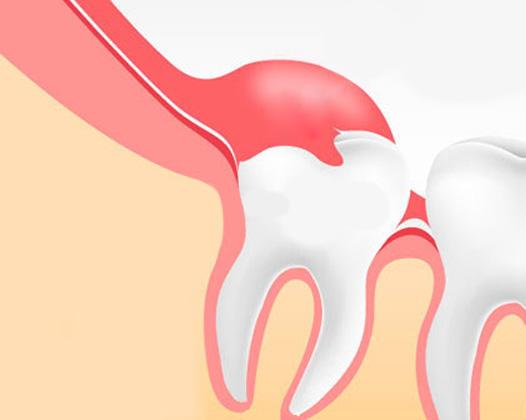 Сложное удаление зуба — процедура малой хирургии
