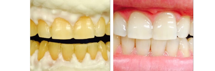 Зубы после zoom форум