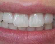Виниры на зубы: стоит ли и сколько это стоит